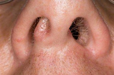 Nhs 111 Wales Encyclopaedia Broken Nose