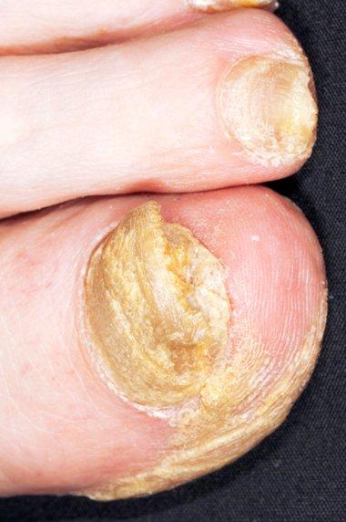 nail psoriasis nhs treatment)