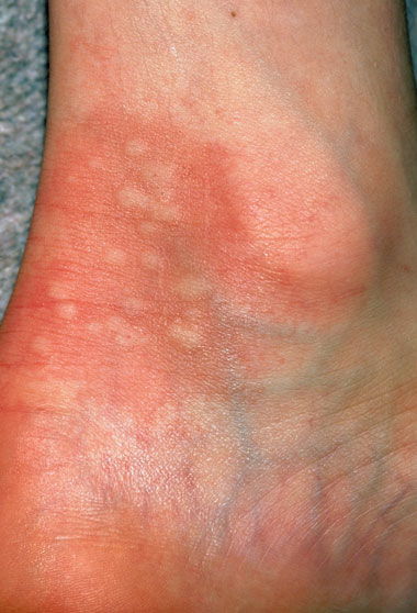 NHS 111 Wales - Encyclopaedia : Nettle rash